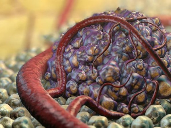 Медики: Красное вино предотвращает рак