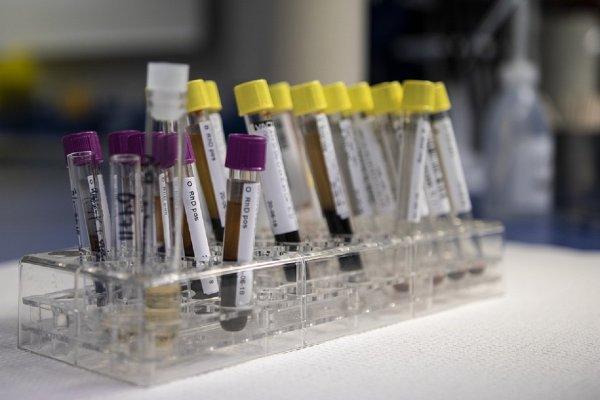 Ученые придумали новый метод выявления рака легких