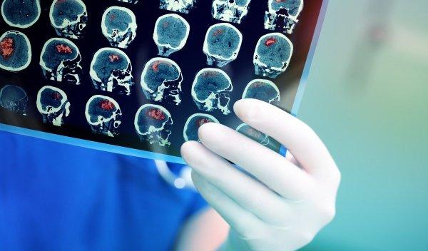 Искоренить онкологию возможно: Ученые научились замедлять клетки головного мозга