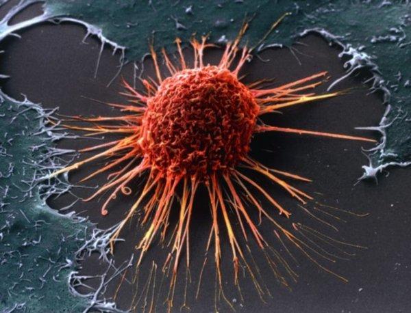Ученые: Вещество в африканской лиане может убить раковые клетки