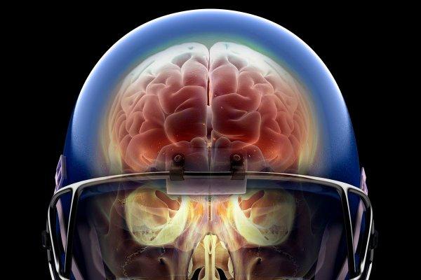 Ученые объяснили, что происходит с мозгом в момент смерти